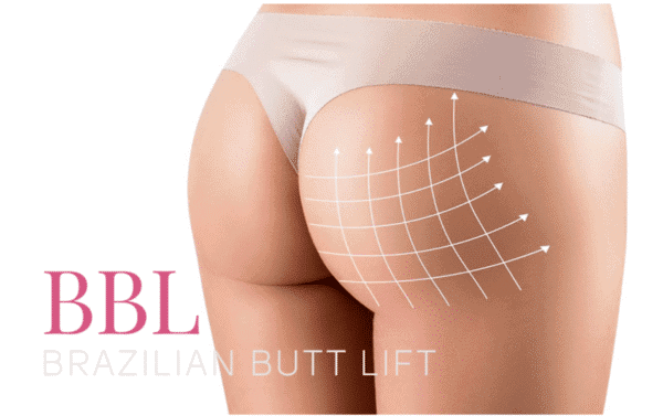 Give your bottom a boost with a Brazilian Butt Lift