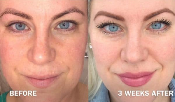 PRP Microneedling – Stimulate your Natural Collagen